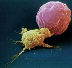 Célula NK (amarela) dando pau na célula tumoral. Mais emocionante que o UFC!
